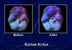 Brain scan before and after kirtan kriya meditation